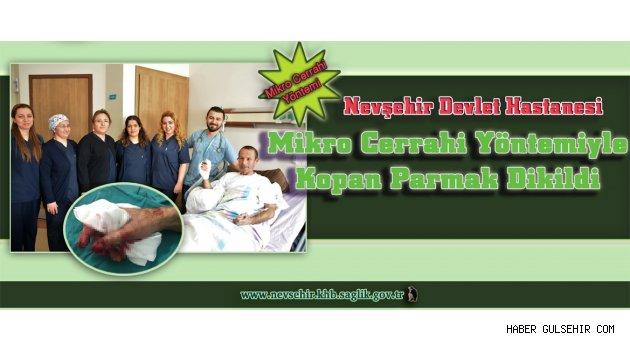 Nevşehirde Kopan Parmak Mikro Cerrahi Yöntemiyle Dikildi